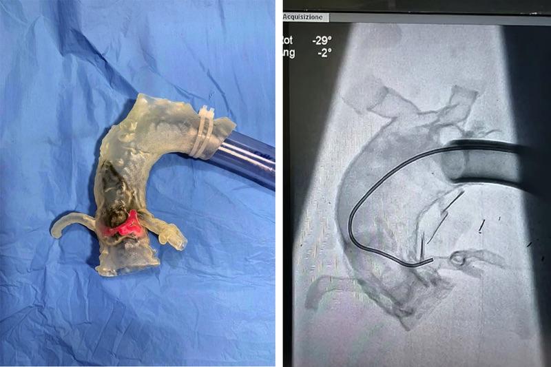 CadXpert wydruk aorty 3d